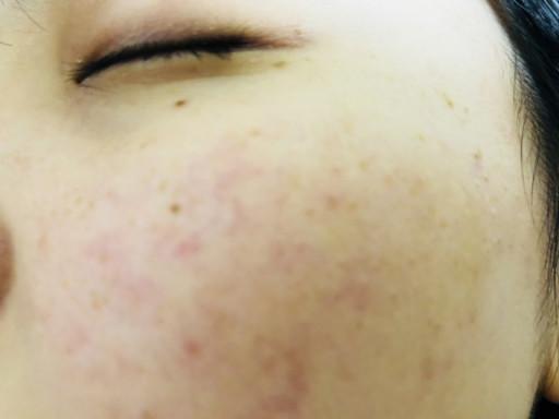 臉頰的痘痘