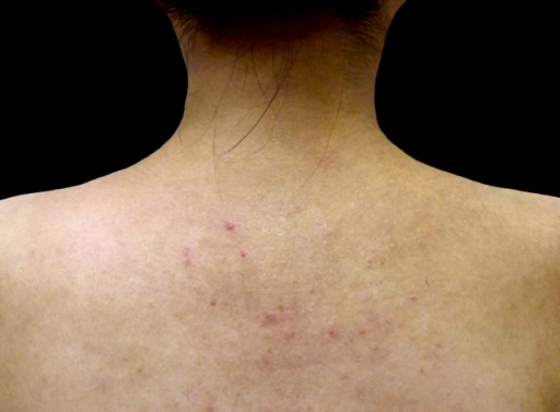 背部的痘痘