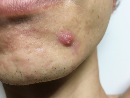 下巴的痘痘