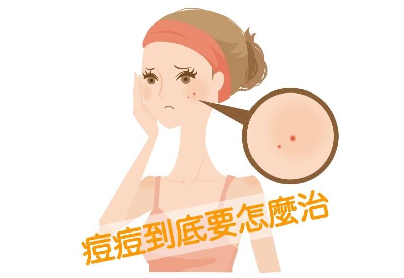 導致長痘的原因和治療方法總結